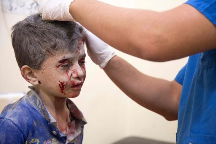A Syrian boy receives treatment at a make-shift hospital following air strikes on rebel-held eastern areas of Aleppo on September 24, 2016. Heavy Syrian and Russian air strikes on rebel-held eastern areas of Aleppo city killed at least 25 civilians on Saturday, the Britain-based Syrian Observatory for Human Rights said, overwhelming doctors and rescue workers.  / AFP PHOTO / KARAM AL-MASRI