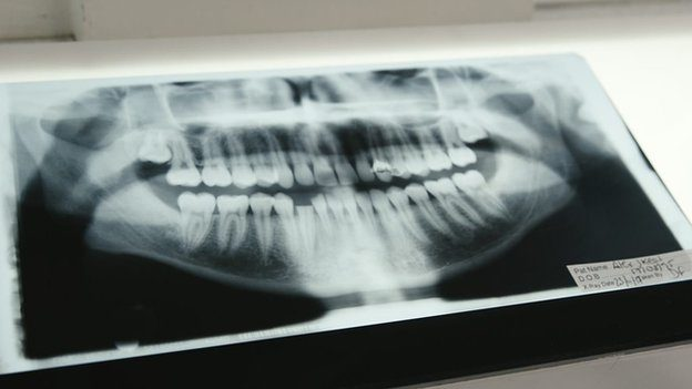 An x-ray of Alex's mouth showing his broken teeth